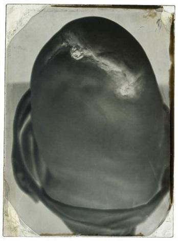 moignon de genou dun soldat de la guerre de 1870 hôpital de campagne lille by auguste houze de l aulnoit