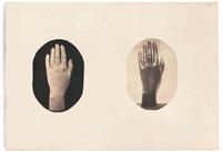 sculpture d'une main de femme, plâtre (+ son bronze; 2 works mntd on one paper) by louis (comte du manoir) roger du val