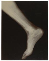 radiographie d'un pied, paris by wilson nobel