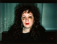 self-portrait after being battered, 1984 by nan goldin