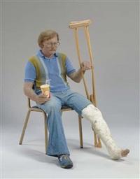 man with crutch by duane hanson