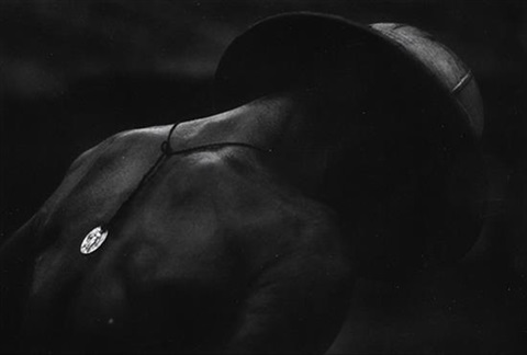 africa leprosy patient by w eugene smith