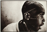 survivor of hutu death camp. rwanda by james nachtwey