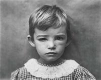 damaged child by sally mann