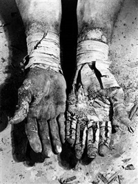 die befreiung der finger (liberation of the fingers), from the series erinnerungsspur (memory's trace) (6 works) by dieter appelt