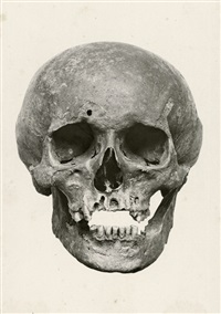 the skull of gottfried wilhelm leibniz, front and side view (2 works) by georg alpers