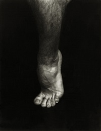 jo's foot by daniel kane
