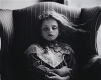 black eye by sally mann
