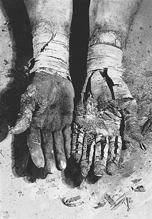 die befreiung der finger (liberation of the fingers) by dieter appelt