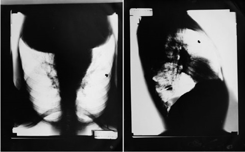 two x-rays of mark morrisroe's chest with embedded bullet by mark morrisroe