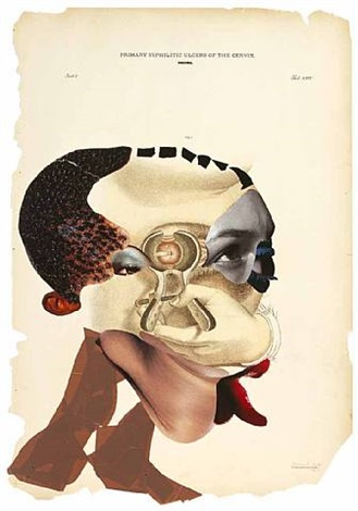 primary syphilitic ulcers of the cervix by wangechi mutu