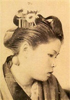 disease, malformation and plastic surgery -the case in 1890, japan by ikkaku ochi