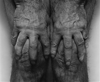 hands spread on knees by john coplans