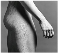 untitled by robert mapplethorpe