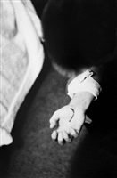 untitled (bleeding hand) by larry clark