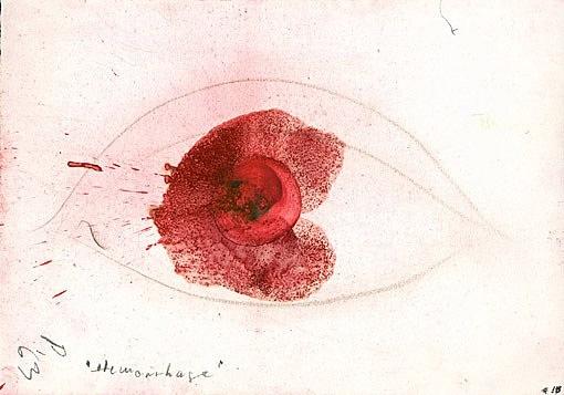 hemorrhage by otto piene